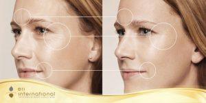 kem dưỡng ẩm có tác dụng ngừa lão hóa da
