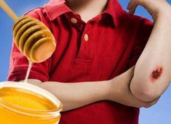 Đối với vết thương hở của trẻ có thể dung mật ong