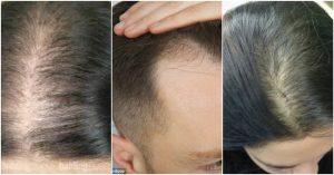 Hỗ trợ kích thích mọc tóc nhanh hơn