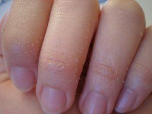 Vì sao tay bị khô nhất vào mùa đông