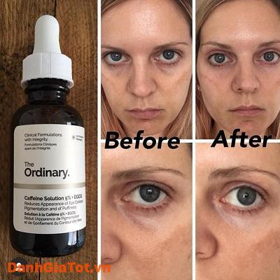 serum mắt the ordinary 5